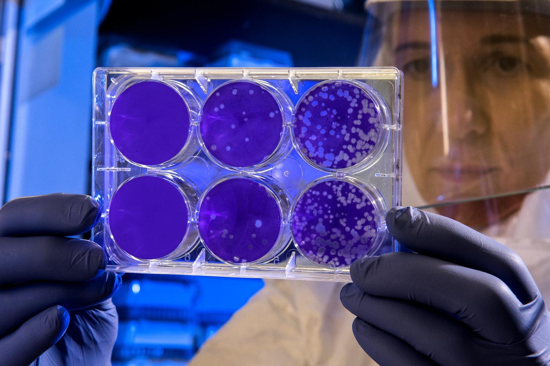 Яка бактерицидна доза випромінення потрібна для бактерицидного  ефекту